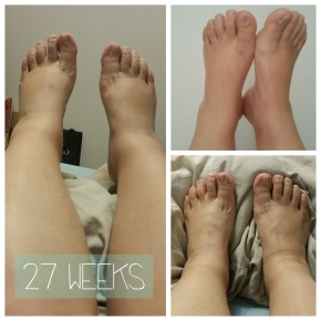 28-weeks Pregnancy Update – Swollen Feet